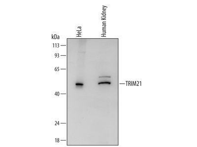 TRIM21 Antibody