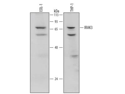 Human IRAK3 Antibody
