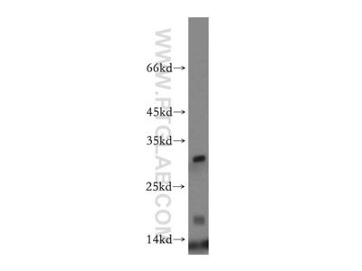 HBM-Specific antibody