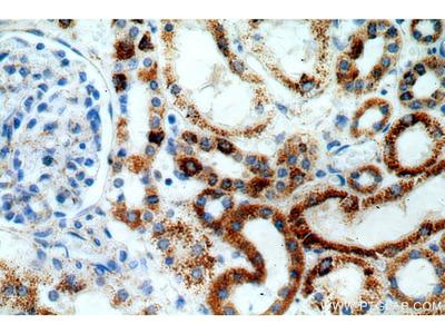 ZIP7 antibody