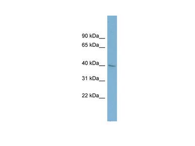 A4GALT antibody - middle region (ARP47303_P050)