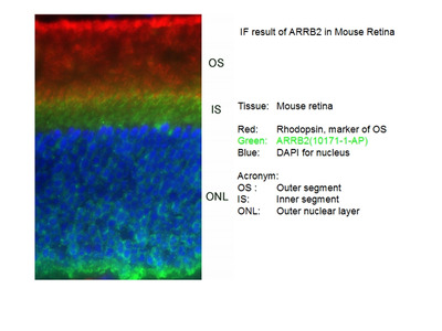 Beta Arrestin 2 antibody - KD/KO Validated