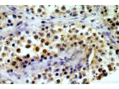 TAF1B Polyclonal Antibody