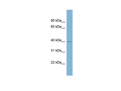A4GALT antibody - middle region (ARP47302_P050)