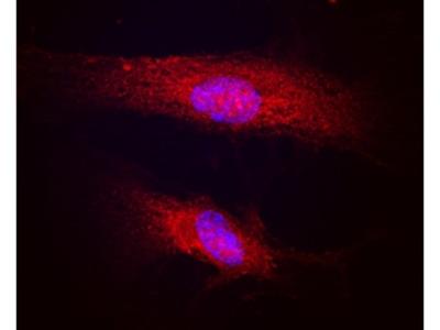 Human Polycystin-1 / PKD1 Antibody