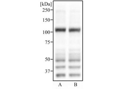 Anti-ABCG1 antibody