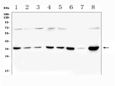 Anti-PITX2/RGS Antibody Picoband
