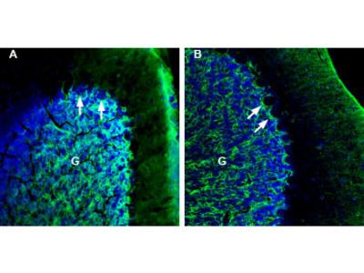 Anti-NETO2 (extracellular) Antibody