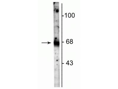 SLC6A1 Antibody