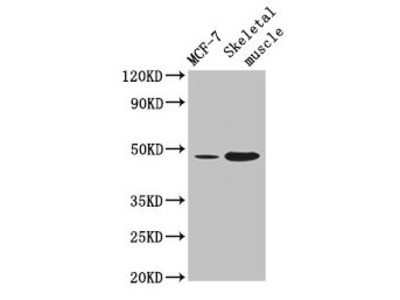 ARRDC3 Polyclonal Antibody