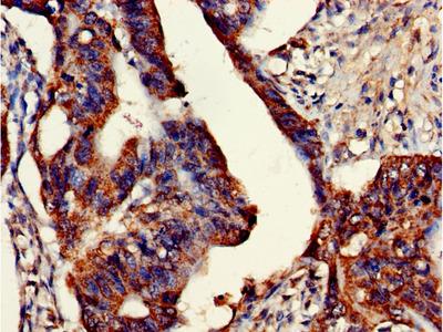 ETHE1 Polyclonal Antibody