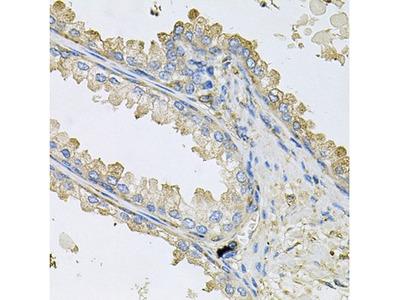 Cyclophilin C Antibody