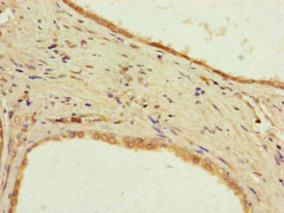 PPP2R2D Antibody