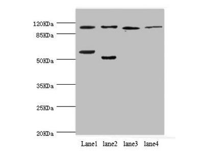 PITRM1 Antibody