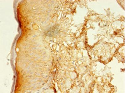 LSMEM2 Antibody