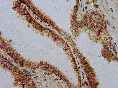 PTH Antibody