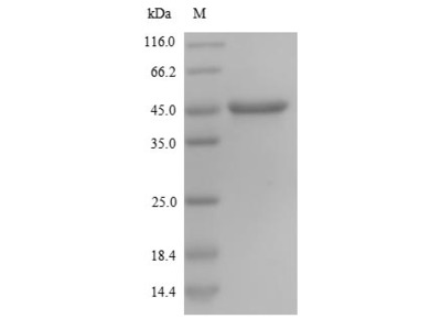 Recombinant Human Nestin protein(NES),partial (Yeast)