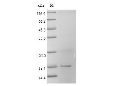 Recombinant Rat Fatty acid-binding protein, heart(Fabp3) (Mammalian cell)