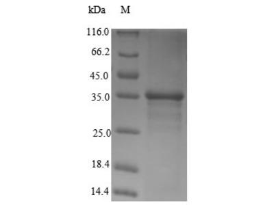 Recombinant Human Transcription activator BRG1(SMARCA4),partial