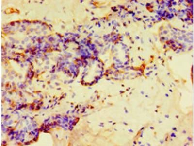 GPS1 Antibody
