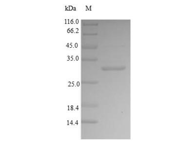Recombinant Human Bone sialoprotein 2 (IBSP),partial (E.coli)