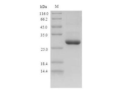 Recombinant Mouse Protein S100-A9(S100a9) (E.coli)