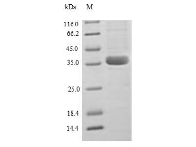 Recombinant Human C-C motif chemokine 2 protein(CCL2) (E.coli)