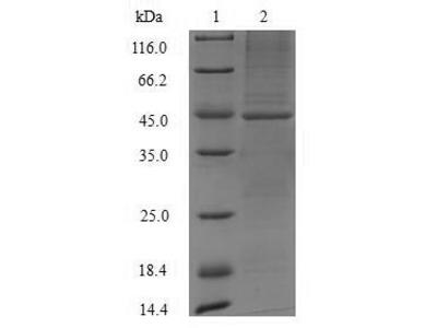 Recombinant Mouse Acid ceramidase(Asah1),partial (E.coli)