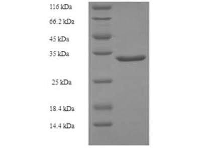 Recombinant Human Growth arrest and DNA damage-inducible protein GADD45 gamma(GADD45G) (E.coli)