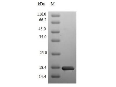 Recombinant Human Sodium/glucose cotransporter 2(SLC5A2),partial