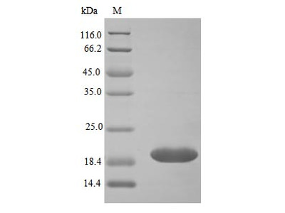 Recombinant Human Neutrophil gelatinase-associated lipocalin protein(LCN2) (Active) (E.Coli)