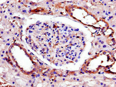 TRIB3 Antibody