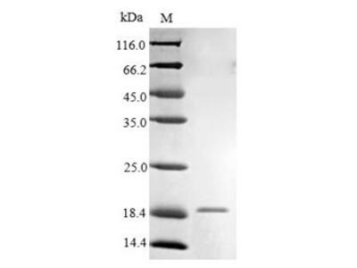 Recombinant Human High affinity immunoglobulin epsilon receptor subunit gamma(FCER1G),partial (E.coli)