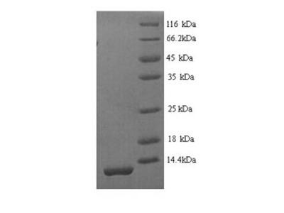 Recombinant Mouse Serine protease inhibitor Kazal-type 1(Spink1)