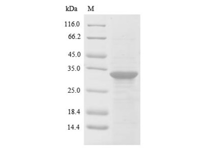 Recombinant Human Dynamin-1(DNM1),partial (E.coli)