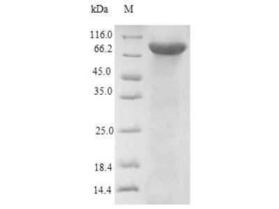 Recombinant Human Dopamine beta-hydroxylase(DBH) (E.coli)