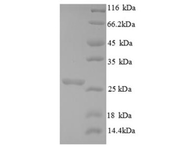 Recombinant Saccharomyces cerevisiae Chitin synthase 1(CHS1),partial (E.coli)