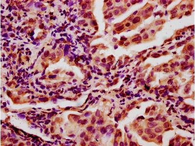 CHAF1A Antibody