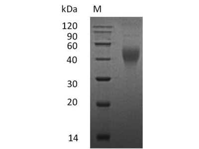 Recombinant Mouse Macrophage colony-stimulating factor 1(Csf1),partial (Active) (Mammalian cell)