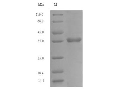 Recombinant Human Fc receptor-like protein 6(FCRL6),partial (E.coli)