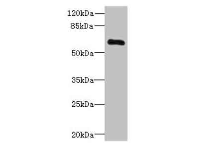 PPP2R1B Antibody