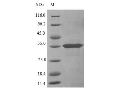 Recombinant Mouse C-type lectin domain family 12 member A(Clec12a),partial (E.coli)