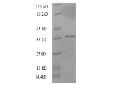 Recombinant Human Proliferation marker protein Ki-67(MKI67),partial (E.coli)