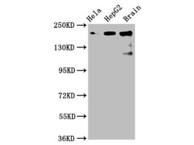 CKAP5 Antibody