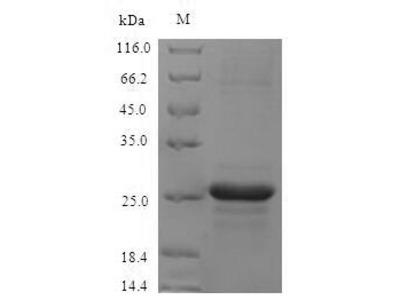 Recombinant Mouse Protein S100-A8(S100a8) (E.coli)