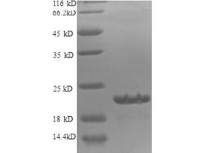 Recombinant Human Diamine acetyltransferase 1(SAT1),partial
