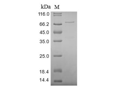 Recombinant Human X-ray repair cross-complementing protein 5(XRCC5),partial (Baculovirus)