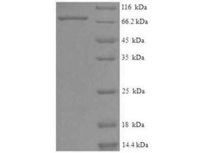 Recombinant Human Eyes absent homolog 2(EYA2),partial (E.coli)
