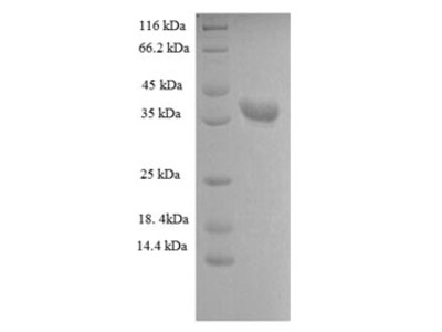 Recombinant Human Heterogeneous nuclear ribonucleoprotein A1(HNRNPA1),partial (E.coli)
