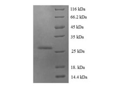 Recombinant Human Protein S100-A6(S100A6) (E.coli)
